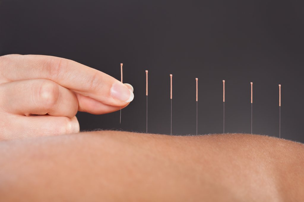accupuncture calgary